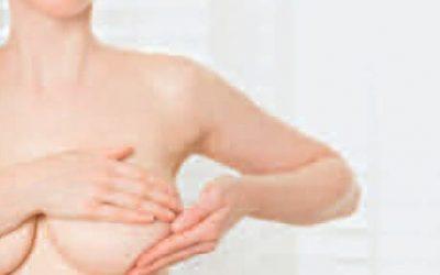 Brustkrebs-Vorsorge: Tipps zum monatlichen Abtasten